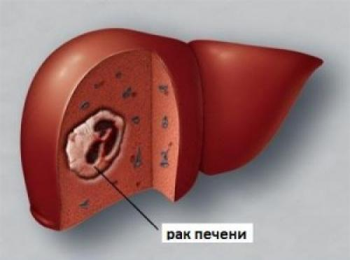 Медведка лечение печени. Можно ли вылечить рак печени?